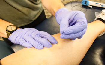 dry needling helps with musculoskeletal pain and dysfunction